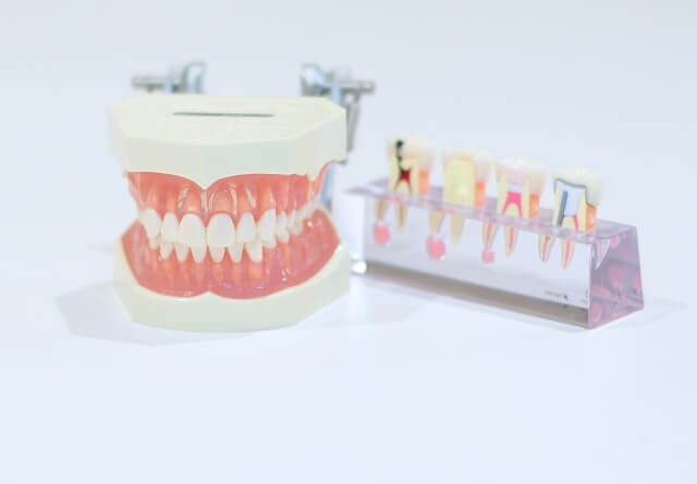 歯科医院のM&A-会社売却